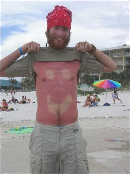 Le meilleur du pire de la plage : coup de soleil humour